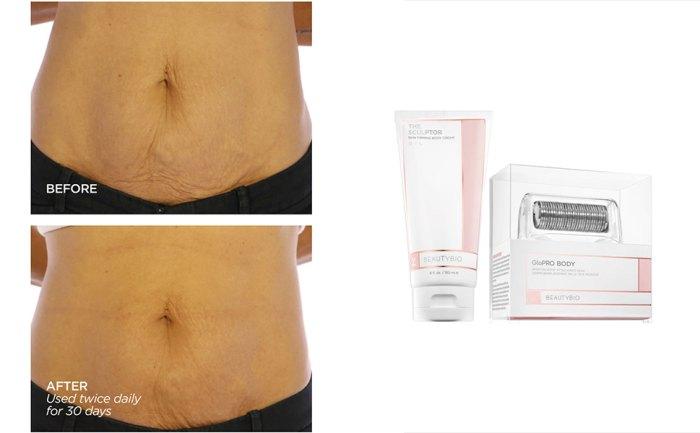 BeautyBio GloPRO® BODY MicroTip™ Attachment & Body Cream Set